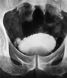 Urogram X_ray of the pelvis of a male patient aged 62, showing the dynamics of bladder control to test the health of the prostate gland image 2 of 2. ...