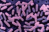 Listeria monocytogenes Bacteria cause food poisoning and may grow at refrigerator temperatures. SEM.