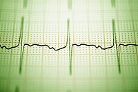 Close_up of an electro cardiogram report