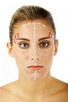 Young woman with lines on her face for cosmetic surgery