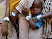 Closeup of young Angolan children waiting in line at an MSF feeding clinic  Each wears an identification bracelet  Feeding centres and other humanitar...