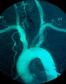Angiogram showing a normal aortic arch.