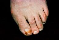 Ochre toenail.