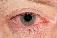 Close_up of the inflamed eyelids with dry and red eye in 57 year old male patient with blepharitis and secondary viral conjunctivitis. Blepharitis cau...