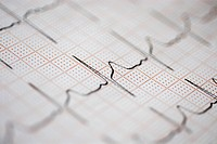 Close_up of an ECG report