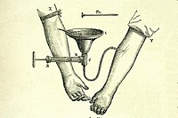 Transfusion of blood from arm to arm. Old illustration of a medical book, 1889