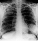 X_ray front view of the chest in a 28 year old female patient, showing pneumonia in the lower lobe of the lung at lower right. Pneumonia is commonly d...