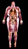 Obese woman, coloured magnetic resonance MRI scan. This image is a multi_slice MRI scan where mean channel values were used for non_transparent pixels...