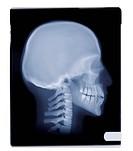 Human skull, X_ray.