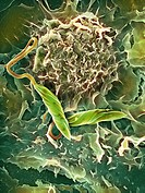 Macrophage attacking a foreign body. Coloured scanning electron micrograph SEM of a macrophage white blood cell round, centre with two Leishmania mexi...