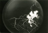 Fluorescein angiogram of the right eye showing peripheral retinal neovascularization, superior temporal view, during the middle phase of vascular fill...