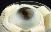 Close_up of the right eyeball from a 69 year old man in a vial, between four and five hours after his death. The photo was taken at the Veneto Eye Ban...