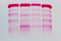 Electrophoresis of human blood serum. This technique separates charged molecules such as proteins, nucleic acids and their degradation products kept i...