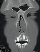 Close_up of an x_ray of a human face showing the sinus cavity