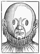 EYE TREATMENT, 1583.A mask for treating strabismus (crossed eyes). Woodcut from Georg Bartisch's 'Ophthalmodouleia, das ist Augendienst,' 1583.