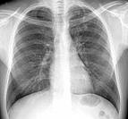 Tuberculosis. X_ray of the chest of a 33 year old male patient with pulmonary tuberculosis. Affected areas of the lungs dark areas are shown by grainy...