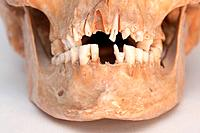 Real skull of human. See portfolio for more.