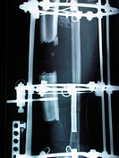 x_ray _ shinbone fracture tibia