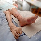 patient´s legs in patient´s bed after successful diabetes treatment _ grub therapy