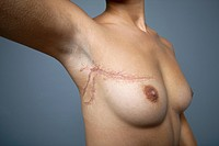 Breast cancer surgery scar. Prosthetic scar on a woman´s right_hand breast and armpit, simulating the scarring that is left after surgery such as that...