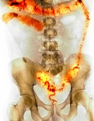 Ulcerative colitis. Coloured X_ray of the abdomen of a 30 year old man with ulcerative colitis. This is an inflammation and ulceration of the colon th...
