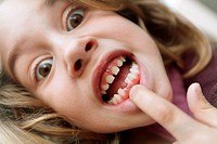 Girl pointing chipped teeth,