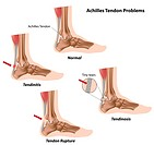 Achilles tendon problems, eps8. Image contains gradient mesh