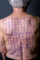 A woman patient's back is drawn with squares indicating locations for the patches of a Chemotechnique Allergan Series to determine specific allergic r...