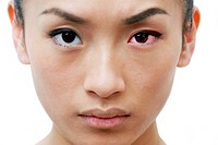 Conjunctivitis. Woman with an inflamed left eye upper right due to conjunctivitis. This is the inflammation of the membrane that lines the inside of t...