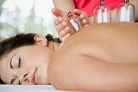 Woman receiving alternative health cupping therapy (thumbnail)
