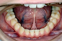 Tongue_tie. View inside the mouth of a 21_year_old woman with tongue_tie. Tongue_tie is a condition where the tongue is too closely attached centre to...