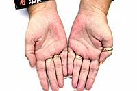 MODEL RELEASED. Rash (erythema) on the palms. Red rash on the palm of the hands in a female patient with palmar erythema. The patient had the thyroid ...