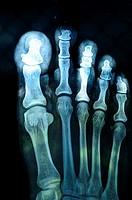 Foot X-ray,Poona,Maharashtra,India