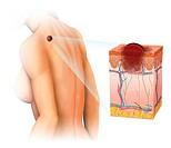 Imagen de una mujer afectada de un melanoma en la espalda y un esquema del desarrollo del melanoma.