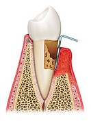 Illustration of the tooth terminally affected by gingivitis, degenerative phase with bone and tooth and gum eaten completely reduced.