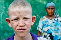 Albino boy with his mother ( Ethiopia).