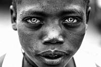 A Young African Boy With Blue Eyes, Jinka, Omo Valley, Ethiopia.