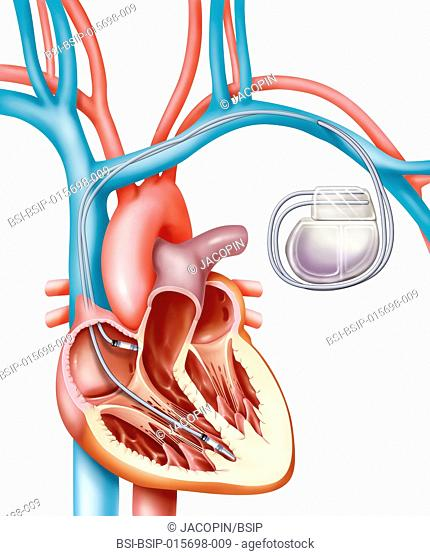 Illustration of a pacemaker and its leads placed in the right atrium and right ventricle