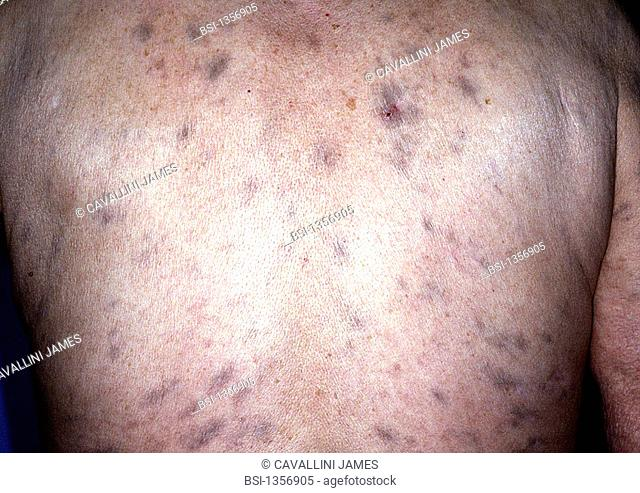 LEPROSY<BR>Cutaneous lesions due to the leprosy bacillus (Hansen's disease)