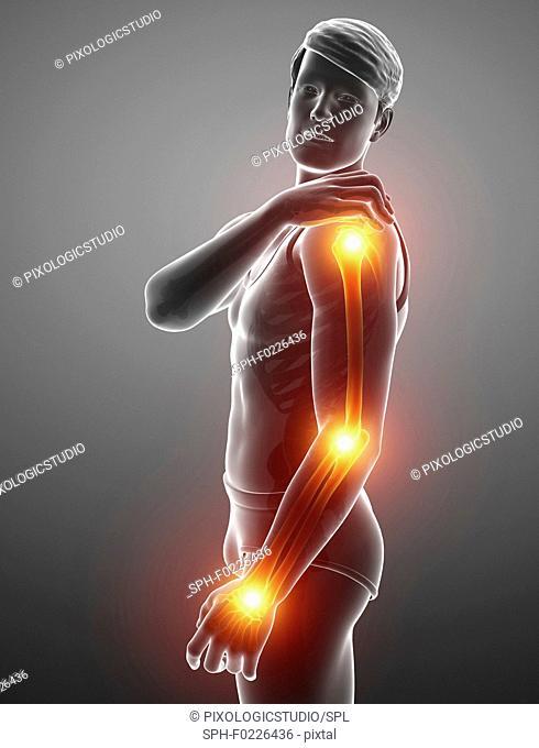 Man with arm pain, illustration