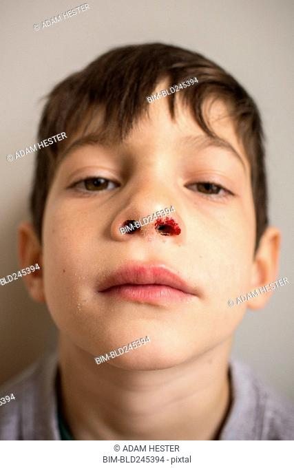 Portrait of Mixed Race boy with bloody nose
