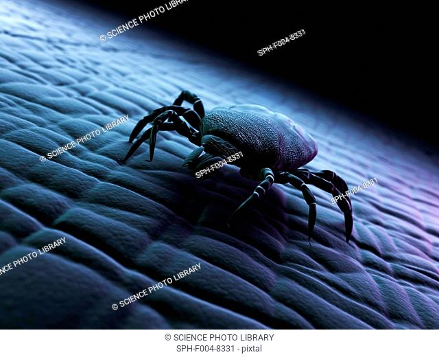 Tick superfamily Ixodoidea on human skin, computer artwork