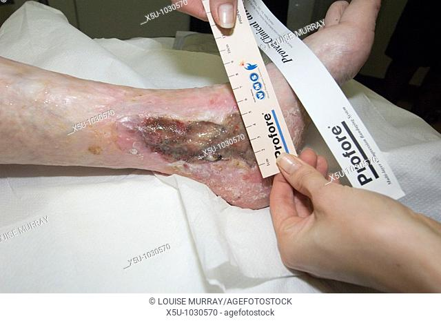 Treatment of a leg ulcer with maggot therapy  Patient Olive Dunseath 79 years old had wound for 10 years  Nurse measures the wound before applying the maggots
