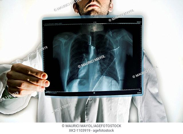 Doctor's x-ray chest