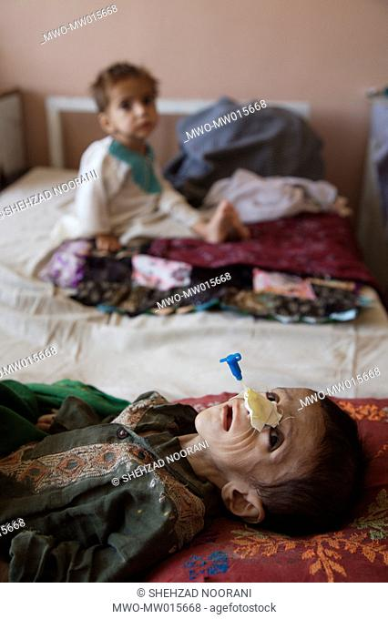 The UNICEF supported therapeutic feeding centre, in Mirwais Regional Hospital, in Kandahar About 40 to 60 percent of Afghan children are either stunted or...