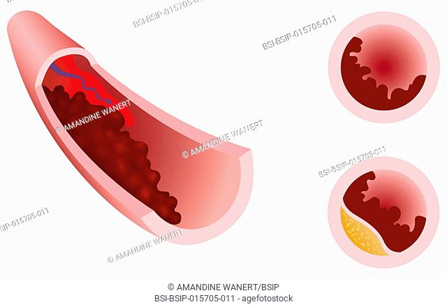 Thrombosis is a blood clot that forms in a vein (venous thrombosis) or an artery (arterial thrombosis). Blood clotting occurs when blood flow is slowed by...