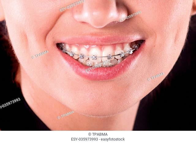 teeth with braces, close up. young woman photo