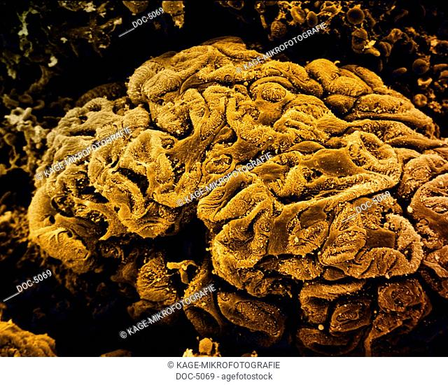 Kidney: Glomerulus Capillary clew, scanning electron microscope 640x Photo-Technical Short Cuts: LUMEN = optical microscope