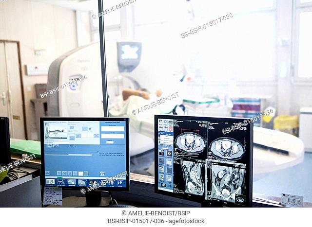 Reportage in a radiology service in a hospital in Haute-Savoie, France. Scanner