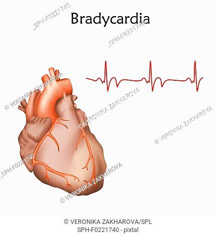 Bradycardia, illustration